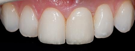 Циркониевая зубная коронка