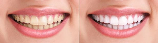 отбеливание нескольких зубов