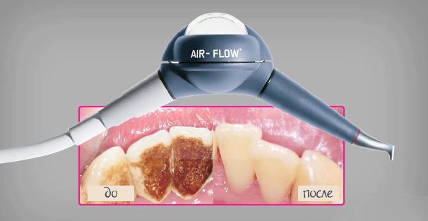 Air Flow чистка и отбеливание зубов