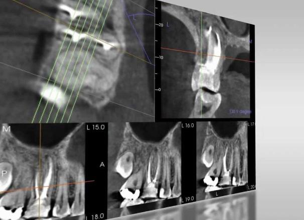 Панорамный снимок зубов 3d