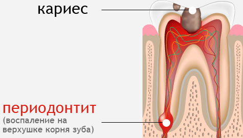 Картинки по запросу периодонтит лечение