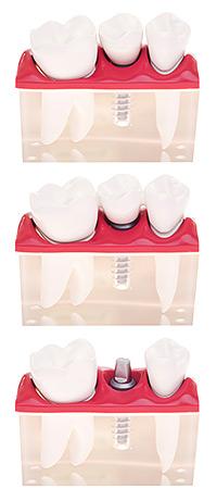 Протезирование зубов в Петербурге (СПб)