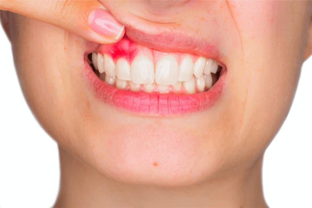 Как лечить воспаление зубов в домашних условиях 69
