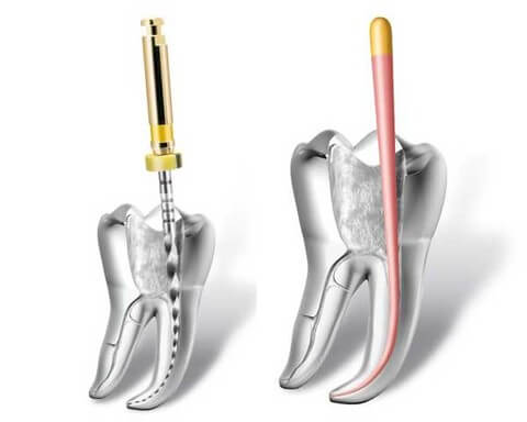 Метод лечения зубов с проблемными корневыми каналами