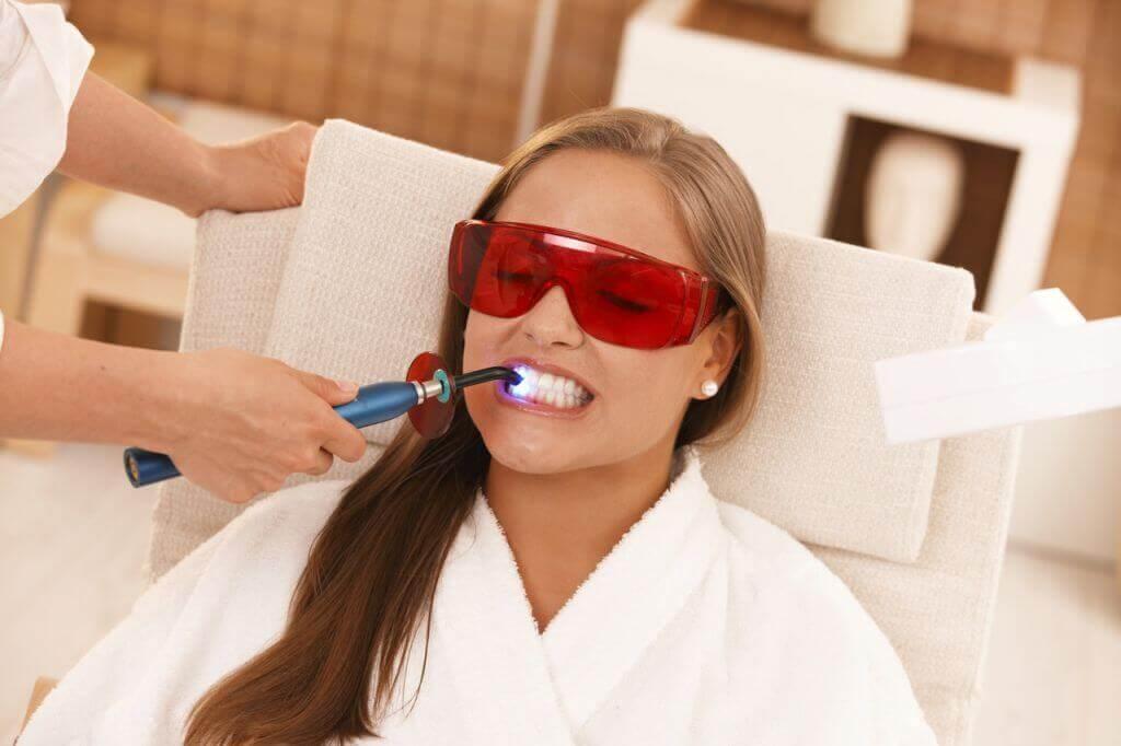 подготовка к отбеливанию зубов.jpg