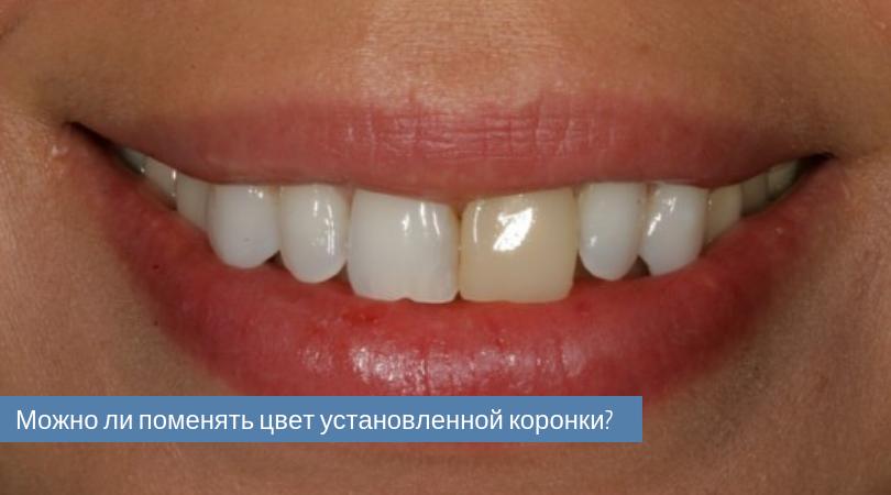 Как поменять цвет зубной коронки