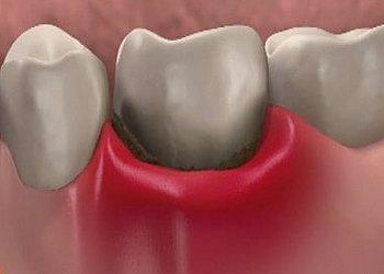 Зуб реагирует на холодное после пломбирования