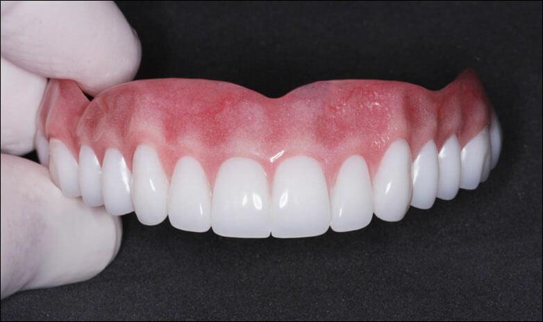 Как сделать съемные зубы 67