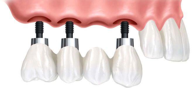 Штифты и импланты на зубы