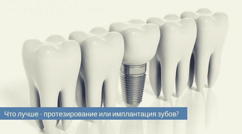 что лучше протезирование или имплантация зубов.jpg