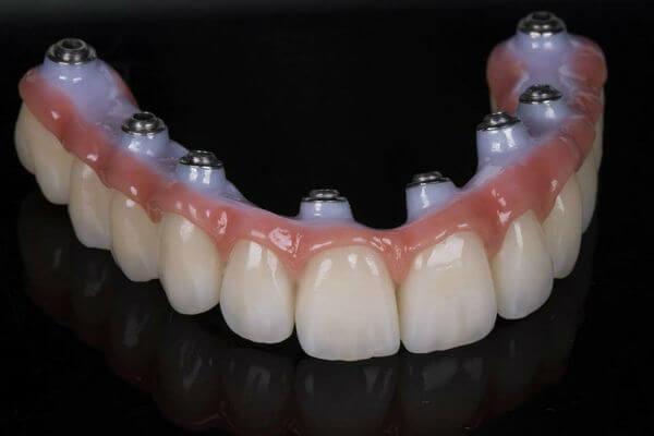 Имплантация зубов виды и цены в архангельске
